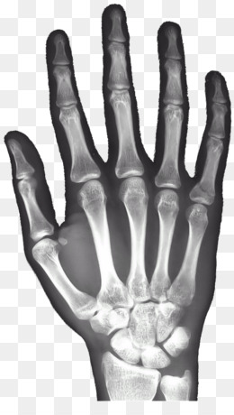 Xray Radiography