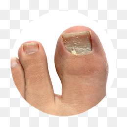 Onychomycosis Finger