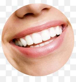 Dental Smile Png Dental Smile Design Dental Smile Transparent Background Dental Smile Face Dental Smile Posters Dental Smile Face Cleanpng Kisspng