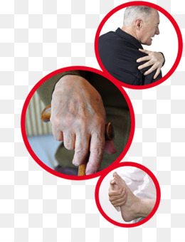 Thumb Hand